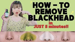 HOW-TO: REMOVE BLACKHEADS in JUST 5 MINUTES!! ✨